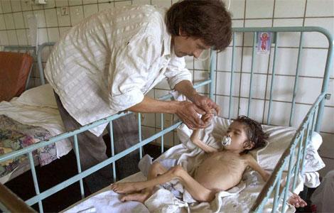 Imagen de un niño que sufre desnutrición en un hospital de Tucumán (Argentina).