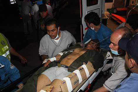 Uno de los heridos en la explosión del coche bomba. | Cortesía de 'La Nación'