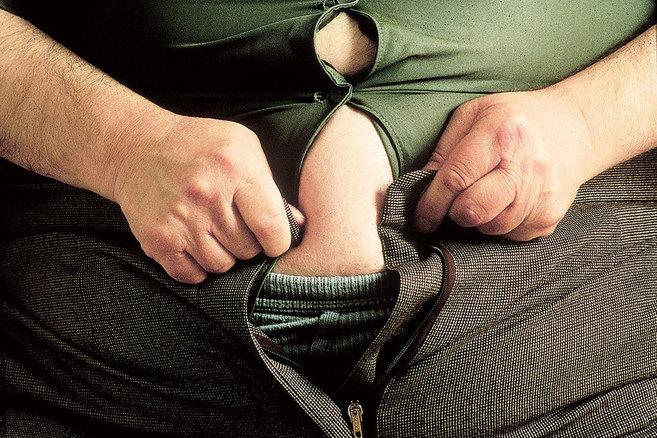 El ADN también tiene mucho que decir en la obesidad.
