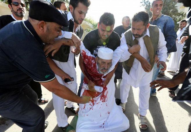 Un hombre herido en el ataque de los milicianos, en Trípoli.