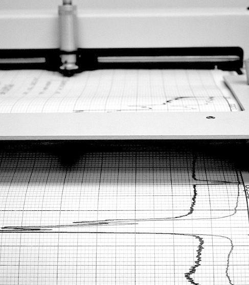 Detalle de un electrocardiograma.
