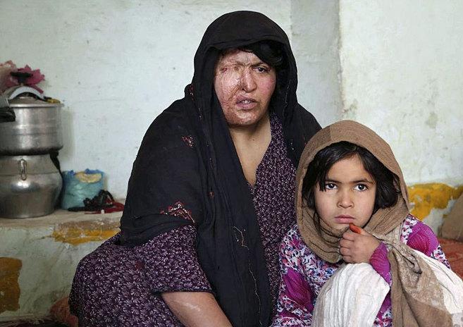 Akhtara de 29 años, víctima de la violencia doméstica, junto a su...