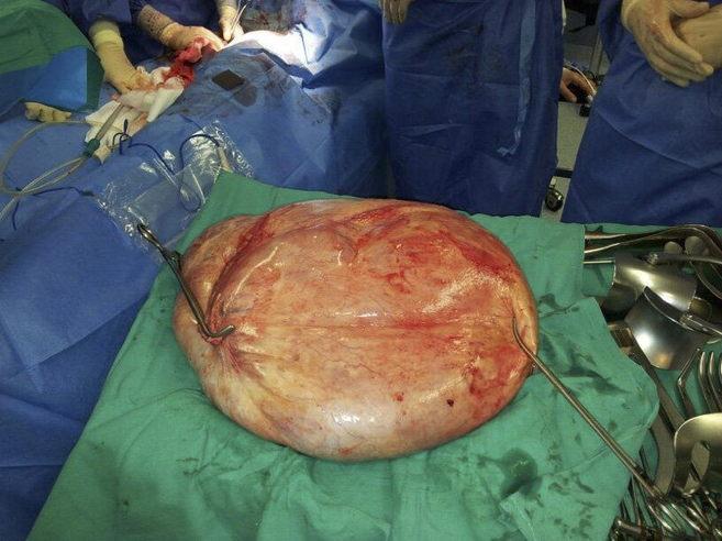 Fotografía del tumor que le extrajeron a esta paciente alicantina