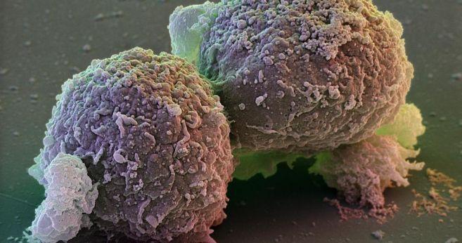 Células madre humanas bajo el microscopio.