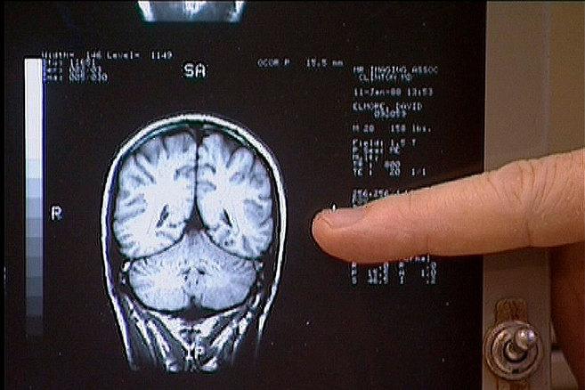 Un médico muestra una imagen del cerebro