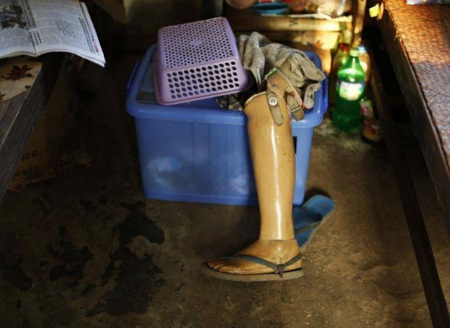 Prótesis de una pierna en un hospital de leprosos.