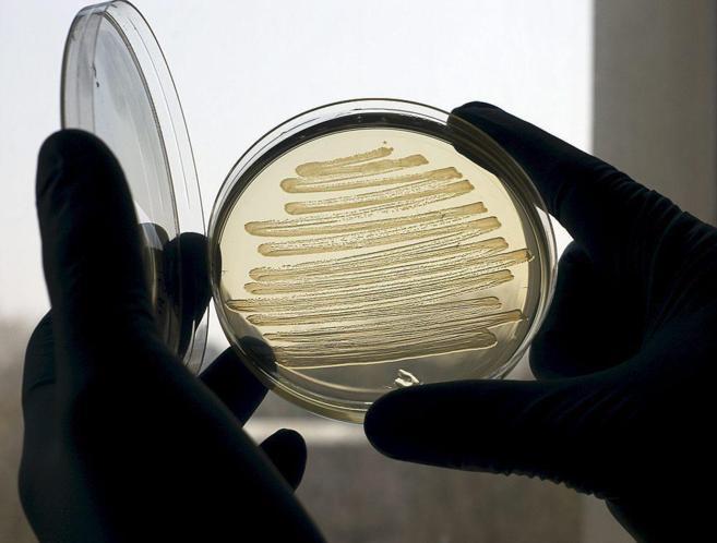 Un investigador maneja muestras bacteriológicas en el laboratorio.