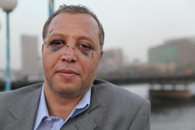 Yahia Zakaria, ex diplomático de 43 años, tras vivir los suceso de...