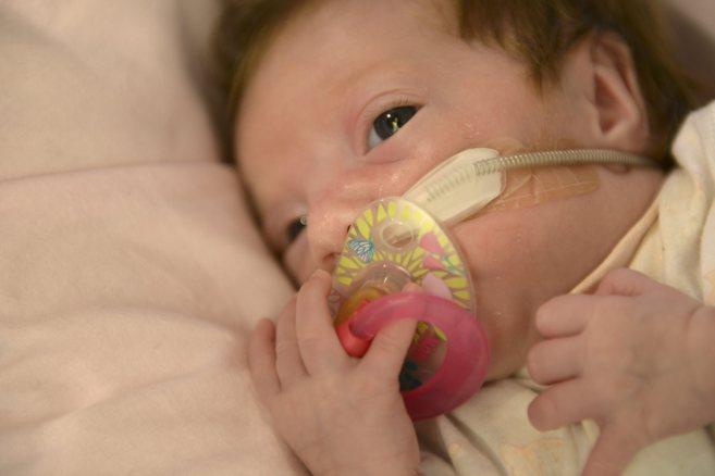 La bebé nacida prematura con una malformación congnénita en el...