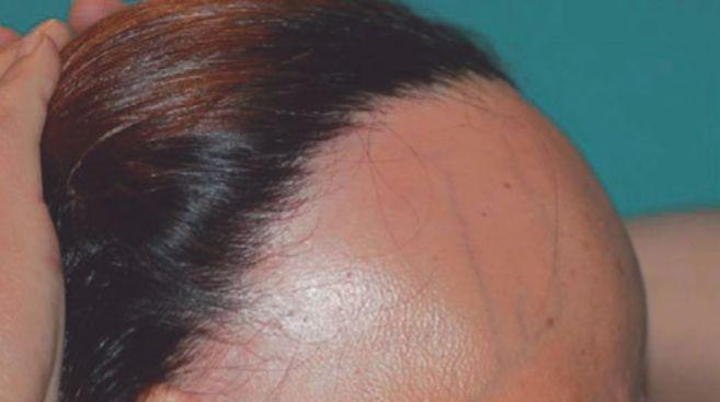 Una mujer con un tipo raro de alopecia.