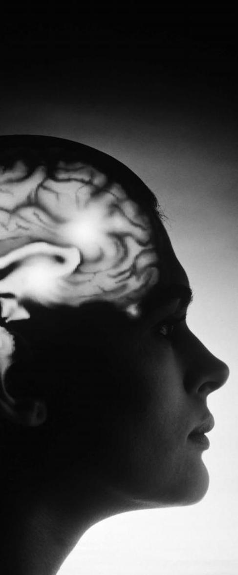 El infarto cerebral puede generar discapacidad grave.