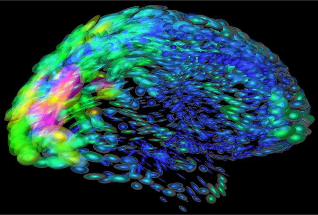 Imagen de la actividad cerebral.