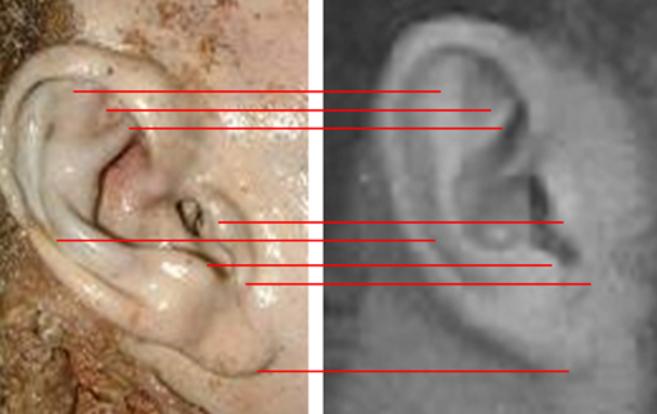 Comparación de la oreja recogida entre el amasijo de carne con  una...