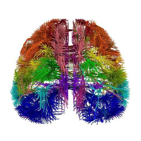 Recreación de las conexiones corticales del cerebro.