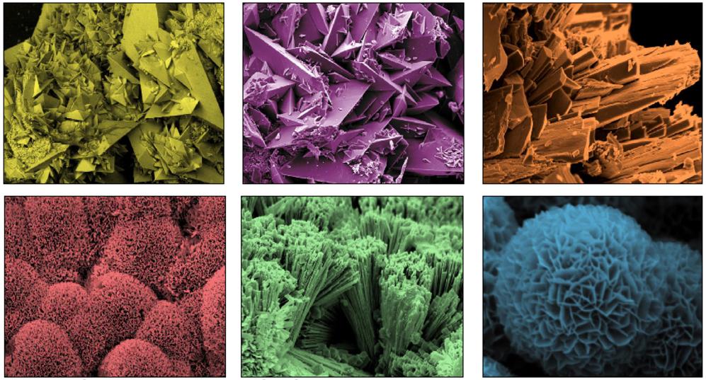 Diferentes tipos de cálculos renales observados mediante microscopía...