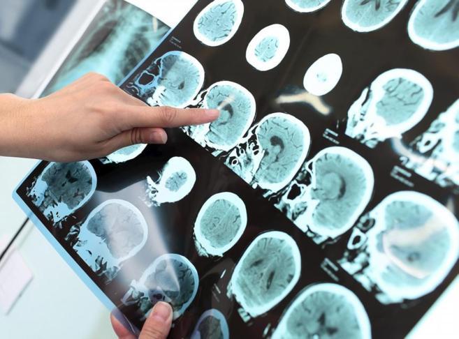 Prueba de imagen de una persona con Alzheimer.