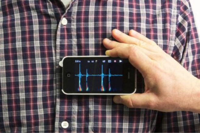 El Iphone ya sirve para auscultar gracias a una funda que recoge los...