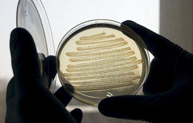 Una muestra de 'E. coli' en el laboratorio, esta bacteria...