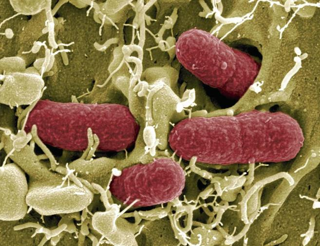 Imagen de una cepa de la bacteria Escherichia coli.
