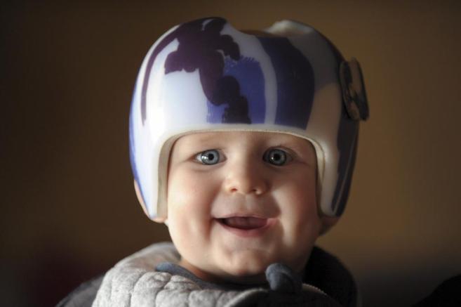 Un niño con un casco corrector.