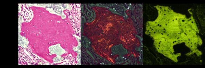Imágenes donde pueden verse las células madre trasplantadas en la...