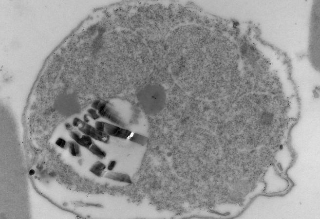 Parásitos de la malaria 'atrapados' en el interior de un glóbulo...