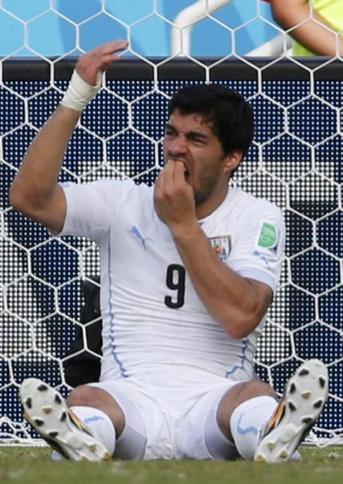 Luis Suárez se toca los dientes tras morder a Chiellini.