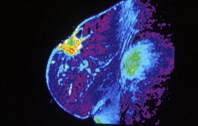 Imagen de un tumor de mama visto mediante mamografía.