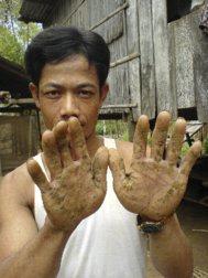 Un joven vietnamita muestra las manchas en las manos por beber agua...
