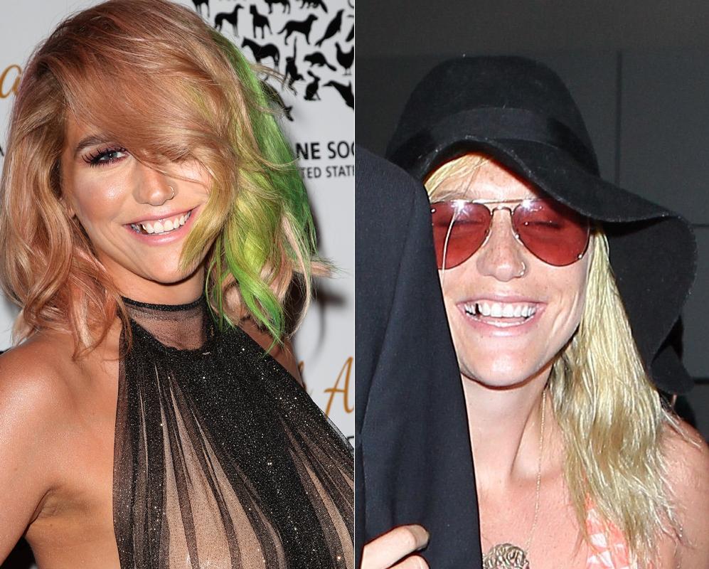 Kesha. Lo de la cantante Kesha (27) no es un caso extremo, es verdad,...