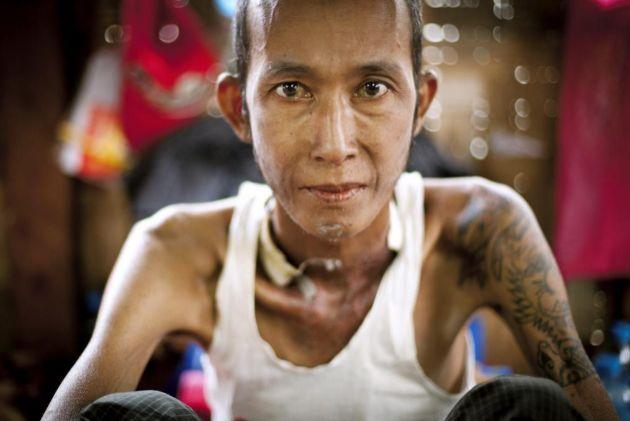 Centro para enfermos de Sida del distrito de Dagon (Rangún, Birmania)
