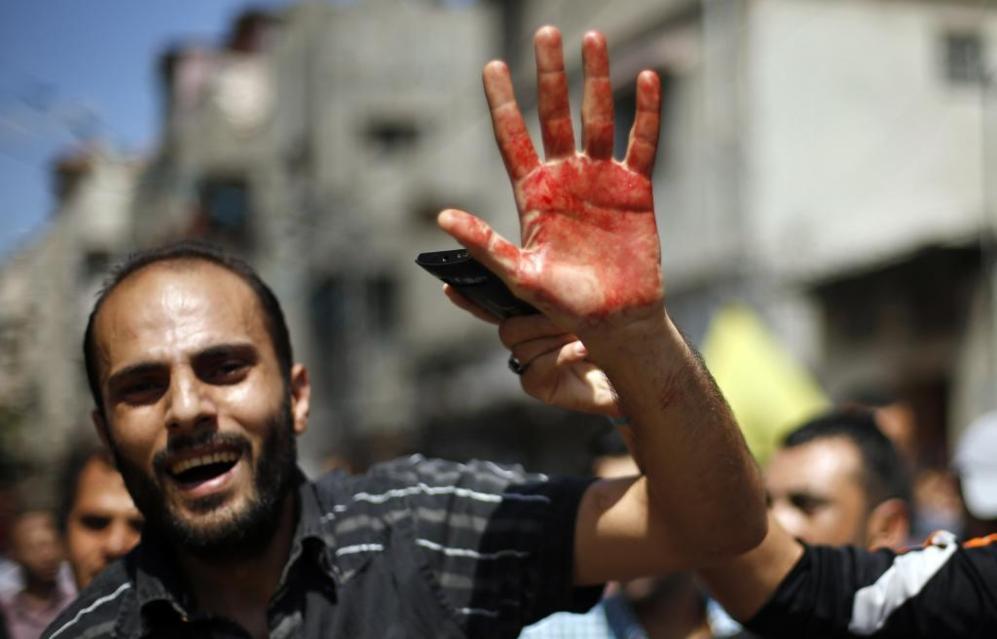 Un hombre grita eslóganes con la mano ensangrentada con sangre de una...