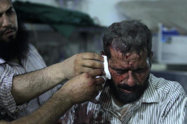 Un hombre herido en un hospital de campo en Duma, cerca de Damasco.