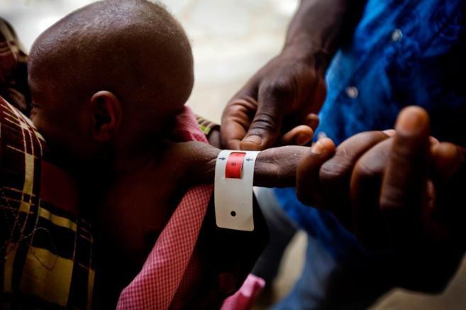 Una enfermera mide el brazo de un niño en un dispensario de Chagoua,...