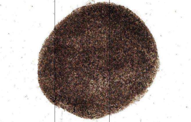 Imagen de la retina obtenida a partir de células iPS facilitada por...