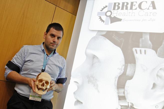 El CEO de Breca Healthcare, José Manuel Baena, posa con un cráneo...