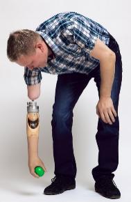 La prótesis integrada al hueso permite adoptar cualquier posición. DR. TAN  et al d16e38384318