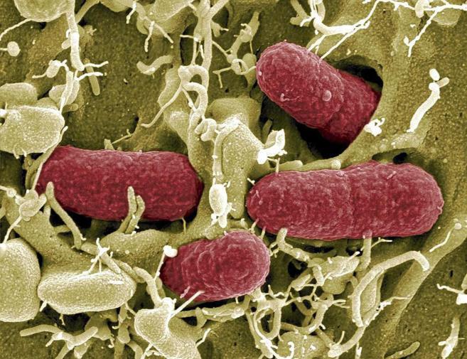 Detalle de una bacteria EHEC, una cepa de la bacteria...
