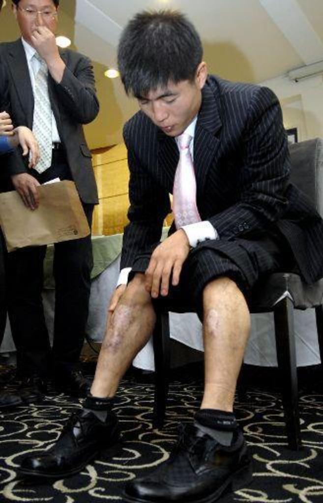 HERIDAS DE TORTURA. El cuerpo de Shin Dong-Hyuk está repleto de las...