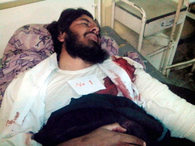 Uno de los heridos en el atentado suicida durante un partido de...