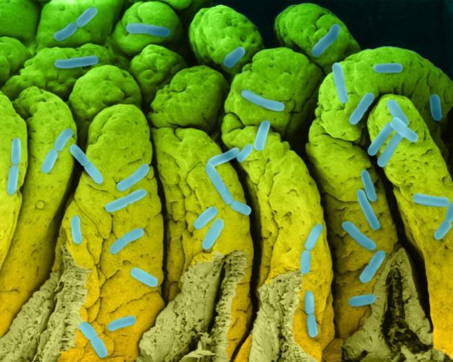 Imagen de una colonia de bacterias de 'E. coli'.