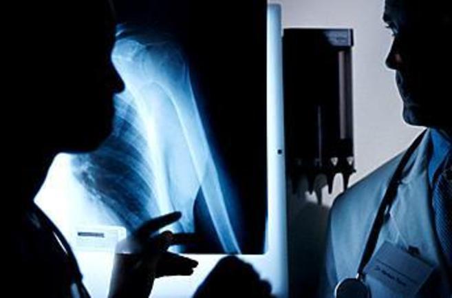 Dos médicos valoran una imagen radiológica.