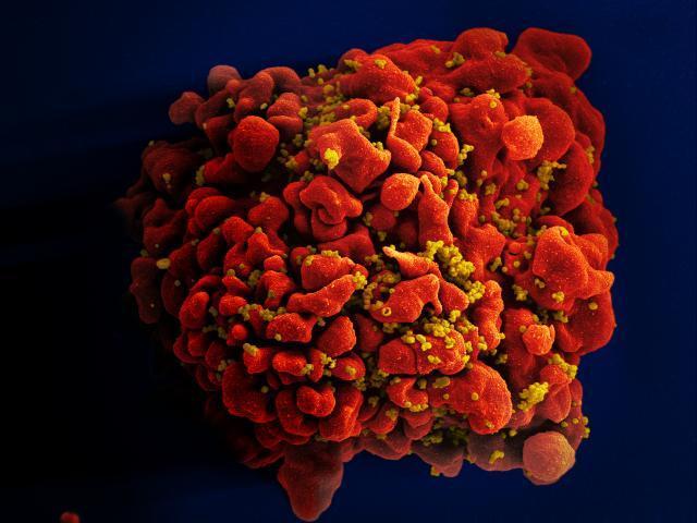 Imagen microscópica de una célula T infectada por el virus del sida.