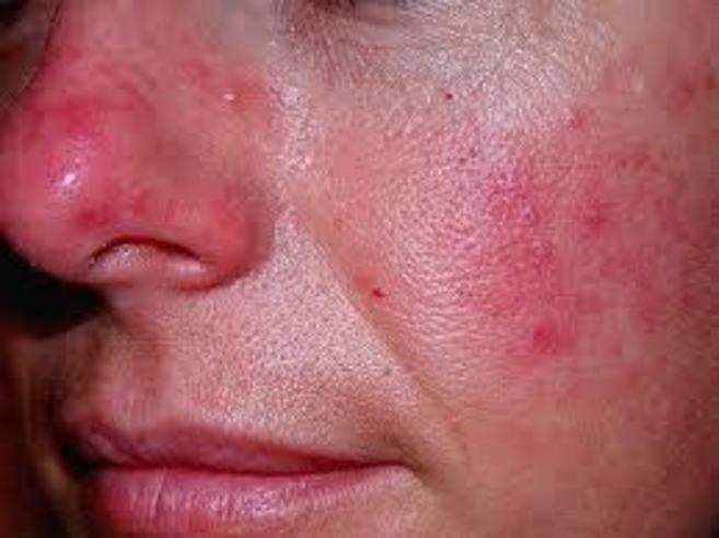 Imagen de una paciente con rosácea.