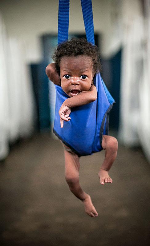 Vasco, un niño de dos meses malnutrido en el Congo.