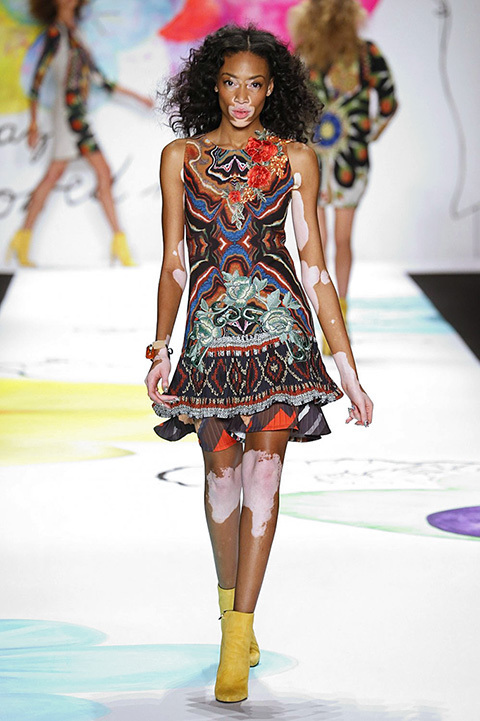 Winnie Harlow es la modelo de moda. Su campaña que protagoniza con la...