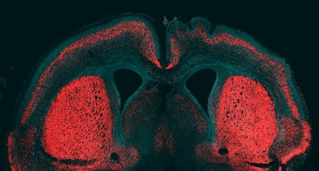 Cerebro de embrión de ratón en el que se inyectó el gen humano que...