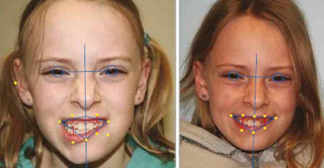 Se usó análisis de simetría facial antes y después del tratamiento...