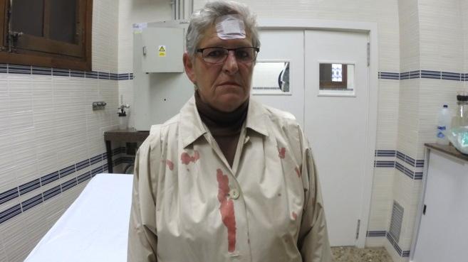 La persona afectada tras ser atendida en la enfermería de la plaza
