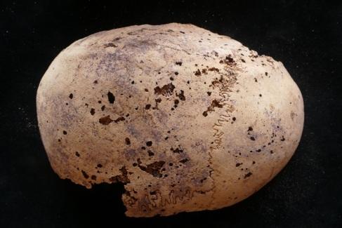 Cráneo de la momia deteriorado por la metástasis del cáncer.